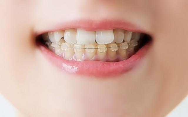歯列矯正中