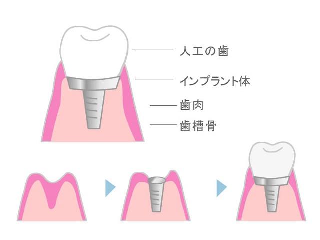 歯の治療、インプラント治療